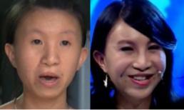 Sự thay đổi diện mạo đến khó tin của cô gái Việt nặng 30kg, gương mặt như cụ bà