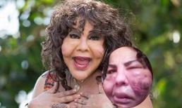 Người phụ nữ chuyển giới mặt 'gồ ghề' sau phẫu thuật