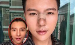 Chàng trai bất chấp đau đớn 5 lần phẫu thuật thẩm mỹ chỉnh mũi