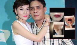 Chồng cũ Dương Yến Ngọc tố vợ lấy ảnh bị ngã, bơm môi để vu vạ