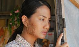 Ngọc Lan bị 'tai nạn' bỏng nửa mặt nghiêm trọng