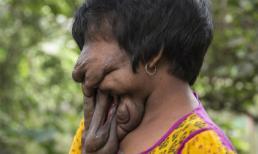 Người phụ nữ sống cả đời không có gương mặt