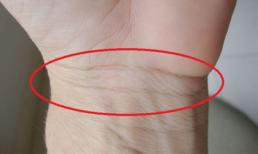 Xem ngấn cổ tay báo hiệu sức khỏe, vận mệnh tương lai