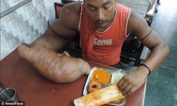 Thanh niên có cánh tay khổng lồ nặng 20kg