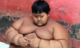 Bé 10 tuổi béo nhất thế giới nặng 192kg