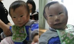 Con sinh ra có khuôn mặt dị dạng dù siêu âm đều đặn
