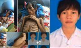 Chàng trai 17 tuổi ở Kon Tum bị đâm vì ghen tuông đã bất ngờ qua đời!