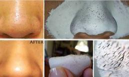 Bóc sạch mụn đầu đen và giảm lỗ chân lông chỉ với sữa và hạt nhục đậu khấu