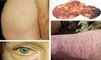 Nguyên nhân và cách phát hiện sớm bệnh ung thư gan