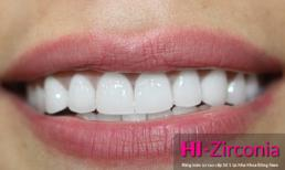 """Răng sứ mang màu sắc """"trong"""" như răng thật"""