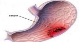 Nhiều người chết oan sớm vì không biết những dấu hiệu sớm này của ung thư dạ dày