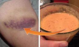 8 cách để đánh tan vết bầm tím trên da nhanh chóng