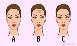 Nhìn khuôn mặt đoán tình trạng sức khỏe cực chuẩn