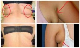 Thoát khỏi tình trạng mỡ thừa ở nách và bụng sau 3 tuần với 4 bài tập đơn giản