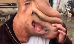 Người đàn ông có khuôn mặt khổng lồ, dài tới thắt lưng