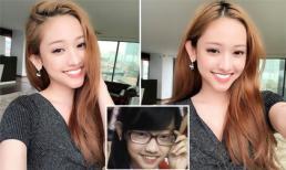 Hot girl Thúy Vi chi hàng trăm triệu để 'thẩm mỹ' răng