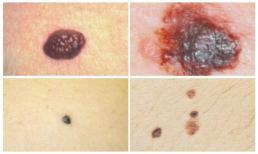 Mẹo nhìn nốt ruồi để biết ung thư da sớm nhất