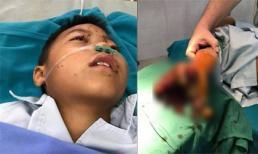 Bé trai 8 tuổi bị dập nát tay vì vừa chơi game vừa sạc điện thoại