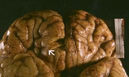 3 loài ký sinh trùng thích làm tổ và ăn não con người cực kỳ nguy hiểm