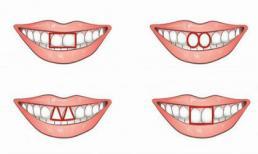 Nhìn răng cửa đoán chính xác tính cách của bạn