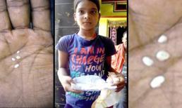 Bé gái Ấn Độ mắc bệnh lạ, ngày nào cũng 'khóc ra bông'