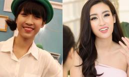 Hoa hậu Đỗ Mỹ Linh âm thầm bọc răng sứ trước khi dự thi Miss World?