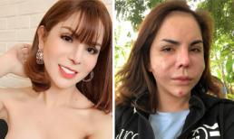 Gương mặt biến dạng của 'hot girl chuyển giới' Linda sau phẫu thuật thẩm mỹ gây xôn xao dư luận