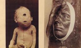 8 hiện tượng 'quái dị' nhất thế giới được lưu giữ trong lịch sử khiến giới y học 'đau đầu'