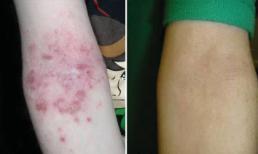 Trị hiệu quả viêm da cơ địa trẻ em bằng thảo dược