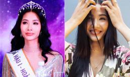 Á hậu Hoàng Thuỳ đeo niềng răng, chuẩn bị cho hành trình đến với Miss Universe 2019?
