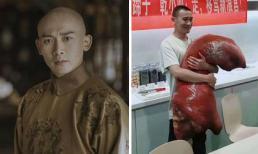 'Hoàng Thượng' Nhiếp Viễn gầy đi trông thấy, dở khóc dở cười vì biệt danh 'chân giò heo' sau 'Diên Hi công lược'