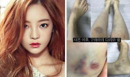 """Hình ảnh bầm tím khắp cơ thể của """"búp bê xứ Hàn"""" Goo Hara được tung ra sau khi bạn trai tố cô hành hung"""