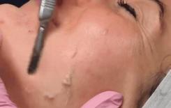 Cạo mặt làm đẹp là phương pháp gì?
