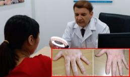 Điều trị hiệu quả bệnh bạch biến bằng thảo dược