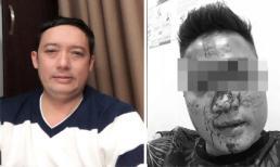Danh hài Chiến Thắng lên tiếng về tin đồn cho vệ sĩ đánh người hâm mộ chảy máu mặt