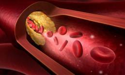 Không chỉ người béo, gầy cũng có thể bị mỡ máu cao: 6 thực phẩm nên ăn để 'tiêu' mỡ nhanh