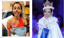 Hoa hậu Quốc tế 2013 suy thận nặng vì liên tục uống 'thần dược' của dân tập gym