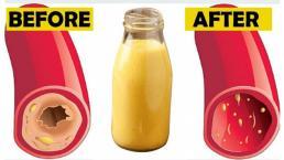 Bài thuốc được xem như 'thần dược' sạch ruột, uống trong 2 tuần khỏi lo mỡ máu cao