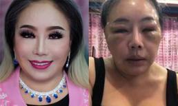 Nữ đại gia 'thay chồng như thay áo' gây sốc với gương mặt thay đổi 180 độ sau cuộc phẫu thuật 'trở về tuổi 20'