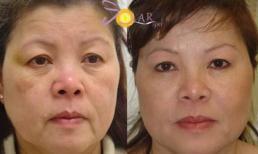 Căng da - xóa bọng mỡ mắt chỉ trong '90 phút' không phẫu thuật