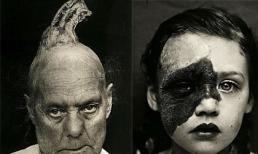 Phụ nữ mọc sừng và những ám ảnh y khoa kinh hoàng vào thế kỷ 19
