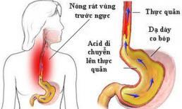 Trào ngược thực quản có thể biến chứng thành ung thư: GS tiêu hoá mách cách 'sống chung'