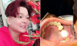 Muốn biết trùng tu lại răng sứ đau đớn và mất thời gian như thế nào hãy đọc chia sẻ của ca sĩ Vũ Hà