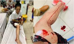 Thúy Nga đăng hình bị tai nạn máu me đầm đìa khiến nhiều người lo lắng