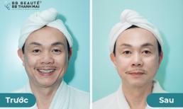 Danh hài Chí Tài bị Việt Hương 'rủ rê' làm đẹp và cái kết bất ngờ