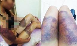 Thai phụ 18 tuổi bị nhóm chủ nợ giam lỏng, tra tấn suốt 18 ngày