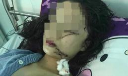 Cô gái xinh đẹp 18 tuổi bị rạch mặt, cổ, tay phải khâu đến 60 mũi