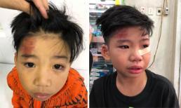 Con trai siêu mẫu Hạ Vy bị tai nạn rách mắt dưới, chấn thương vùng não nhẹ