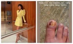Hoa hậu H'Hen Niê khiến fan xót xa khi ngón chân mưng mủ, chảy máu vẫn phải thần thái trên đôi giày cao gót