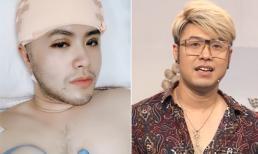 Diện mạo của Akira Phan thay đổi thế nào sau khi phẫu thuật thẩm mỹ?